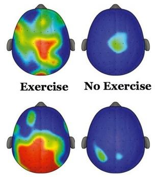 Exercise brain
